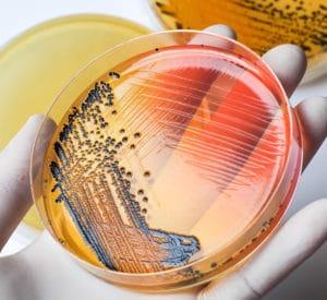 Agents biologiques et risques associés