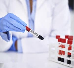 Produits d'origine humaine et risques biologiques